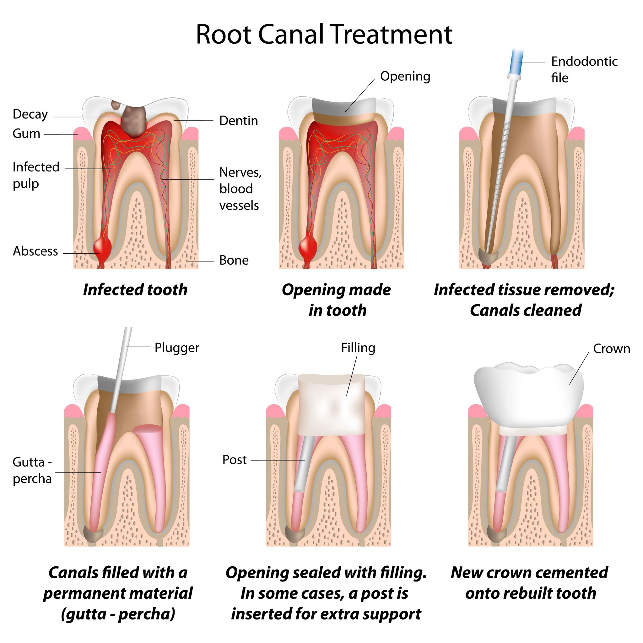 Ooltewah Root Canal