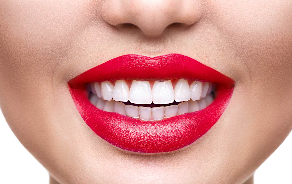 dental veneers Chattanooga TN cosmetic dentist