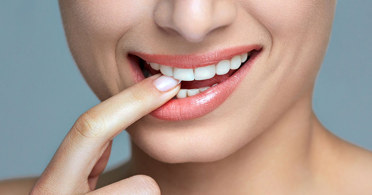 professional teeth whitening ooltewah tn